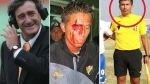 La Copa Perú y sus últimos cinco escándalos más recordados - Noticias de martin dall