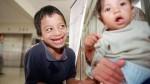 Menores con labio leporino serán operados gratis - Noticias de labio leporino