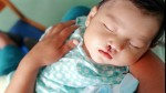 Células madre reparan tejidos para curar el labio leporino - Noticias de labio leporino