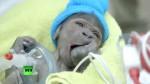 El gorila que nació en inédito parto por cesárea en EE.UU. - Noticias de christina simmons