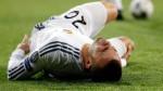 Jesé recibe respaldo del Real Madrid por su grave lesión - Noticias de jens keller