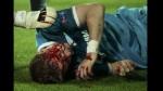 Lewandowski provocó esta terrible lesión en defensor del Zenit - Noticias de tomas hubocan