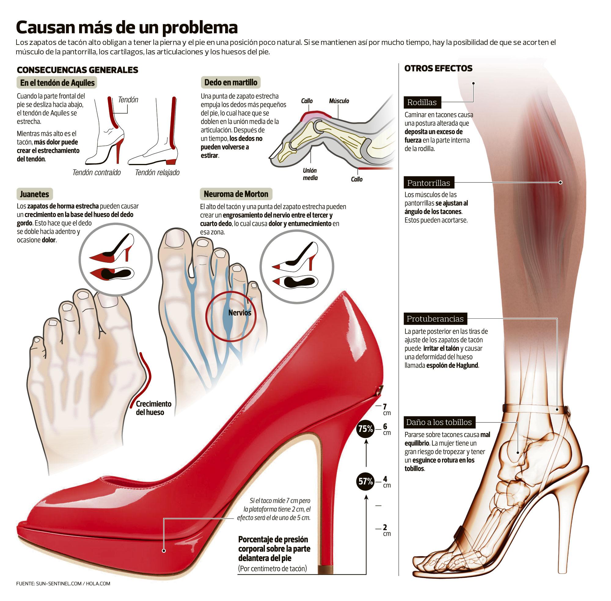 Esa es la razón del dolor cuando se cambian los tacones por zapatos chatos b5e534479c88