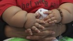Obesidad es un problema grave como cáncer, según especialista - Noticias de cáncer infantil